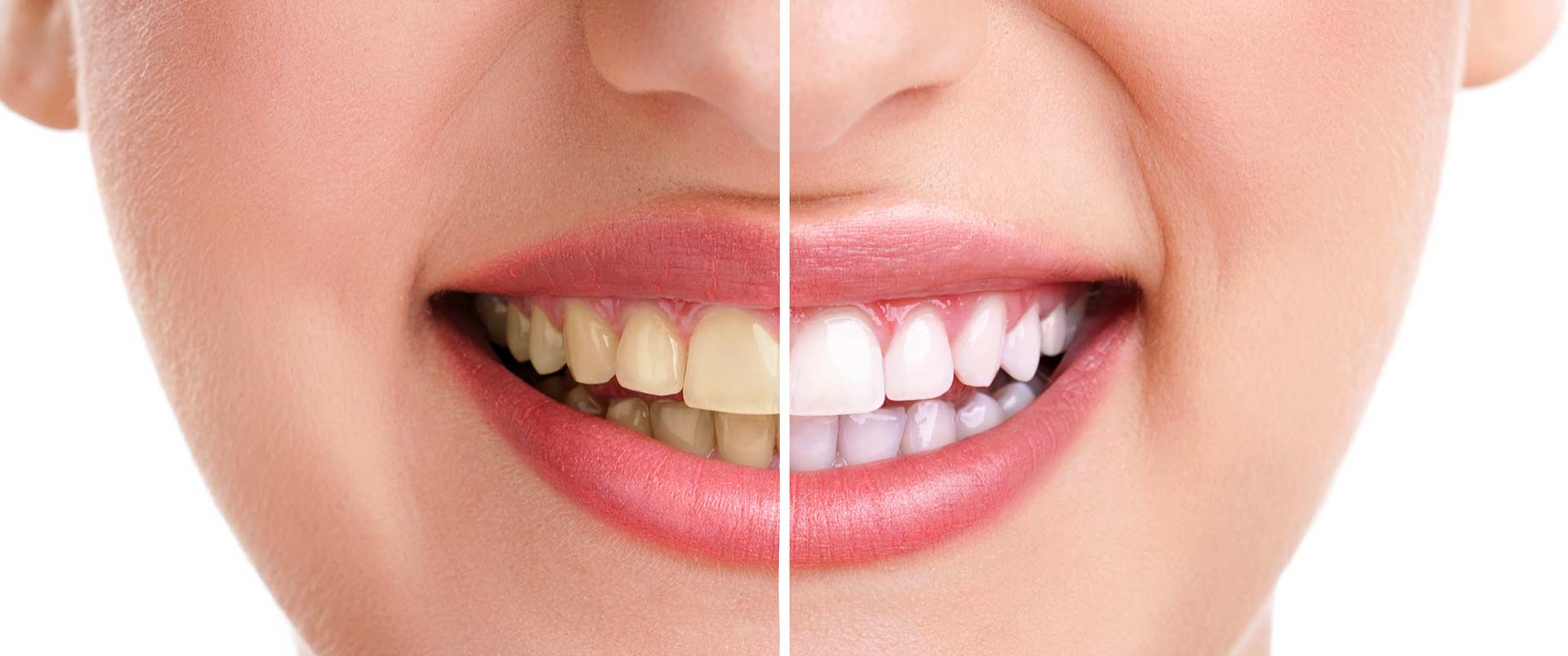 Cochrane Dental Centre | Teeth Whitening
