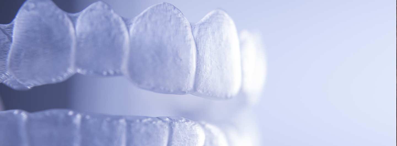 Cochrane Invisalign Braces | Cochrane Dental Centre | Dr